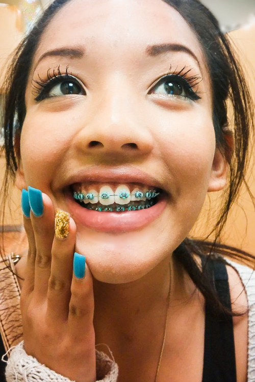 Orthodontic Brace with a touch of Fashion